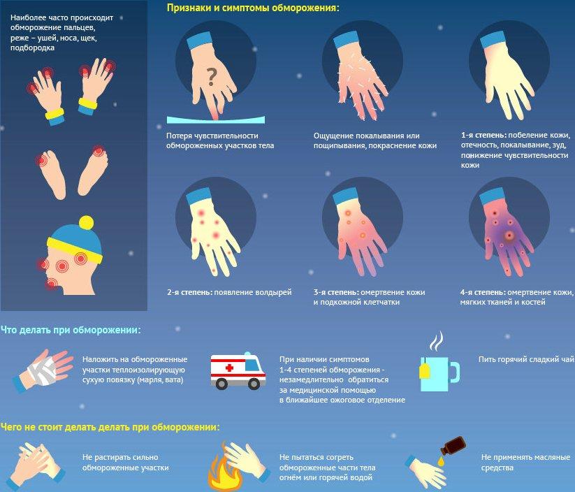 Первая помощь при обморожении - степени и признаки, что нельзя делать