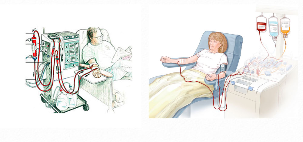 Гемодиализ. что такое гемодиализ, показания, противопоказания, виды процедур
