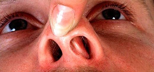 Короста: фото, симптоми, як виглядає, у дітей, лікування