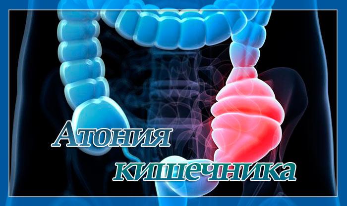 Что такое атония кишечника? - доктор нк