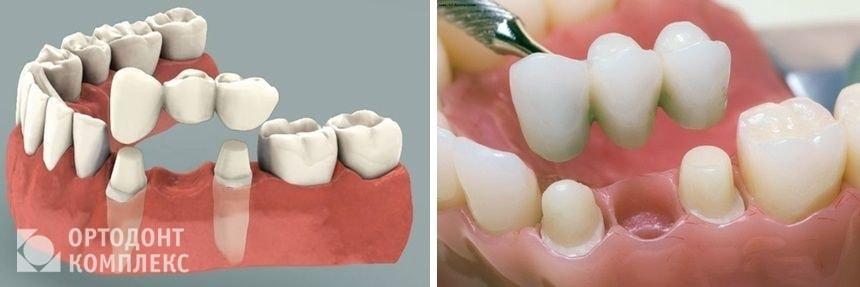 Протезирование зубов: показания, подготовка и порядок процедуры