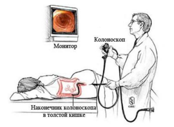 Фкс кишечника что это - помощь доктора
