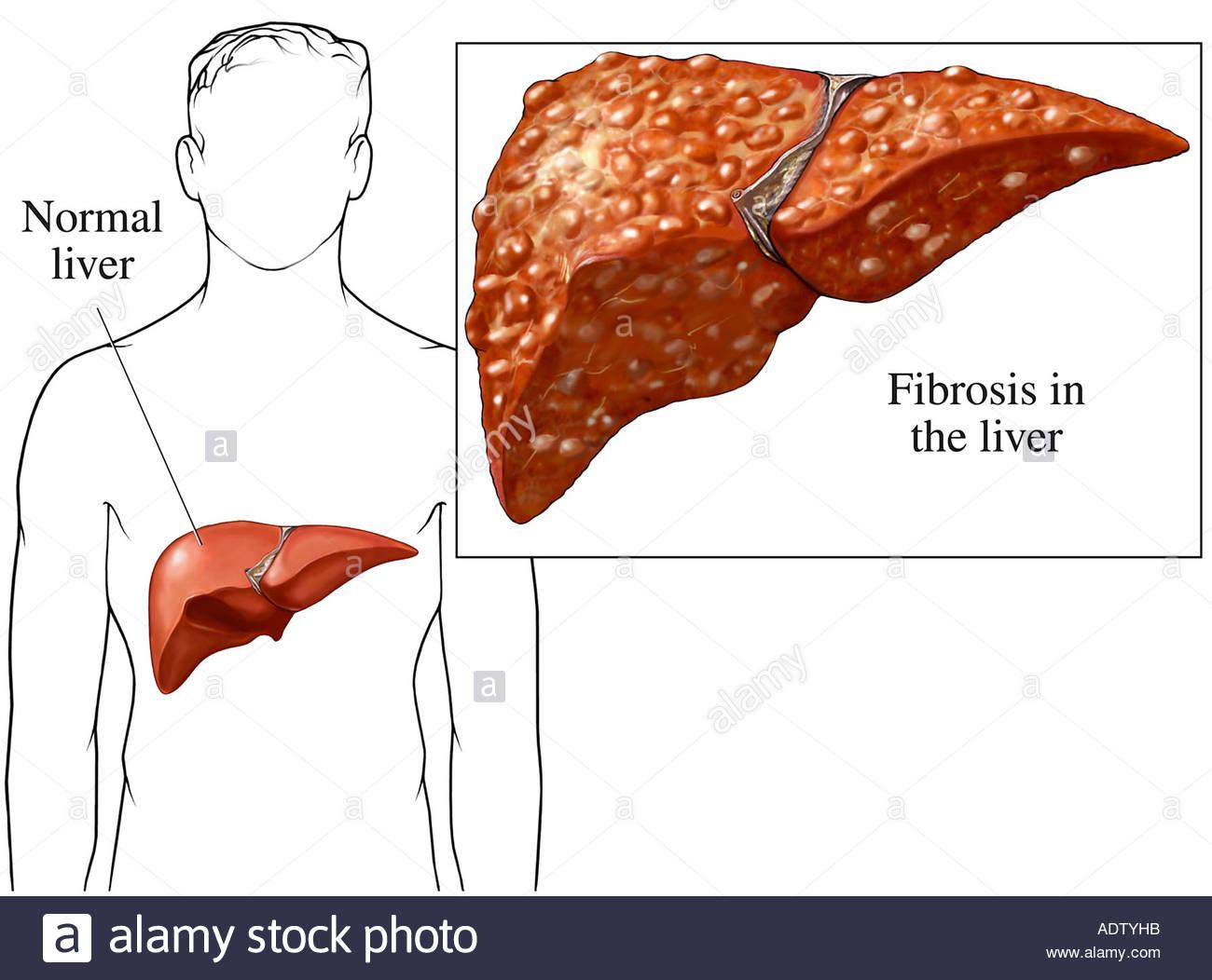 Фиброз печени 2 степени - лечение и прогноз