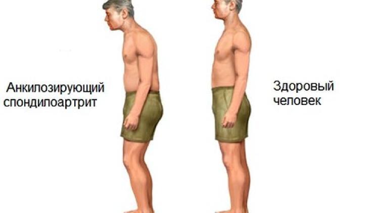 Болезнь бехтерева. причины, симптомы диагностика и лечение :: polismed.com