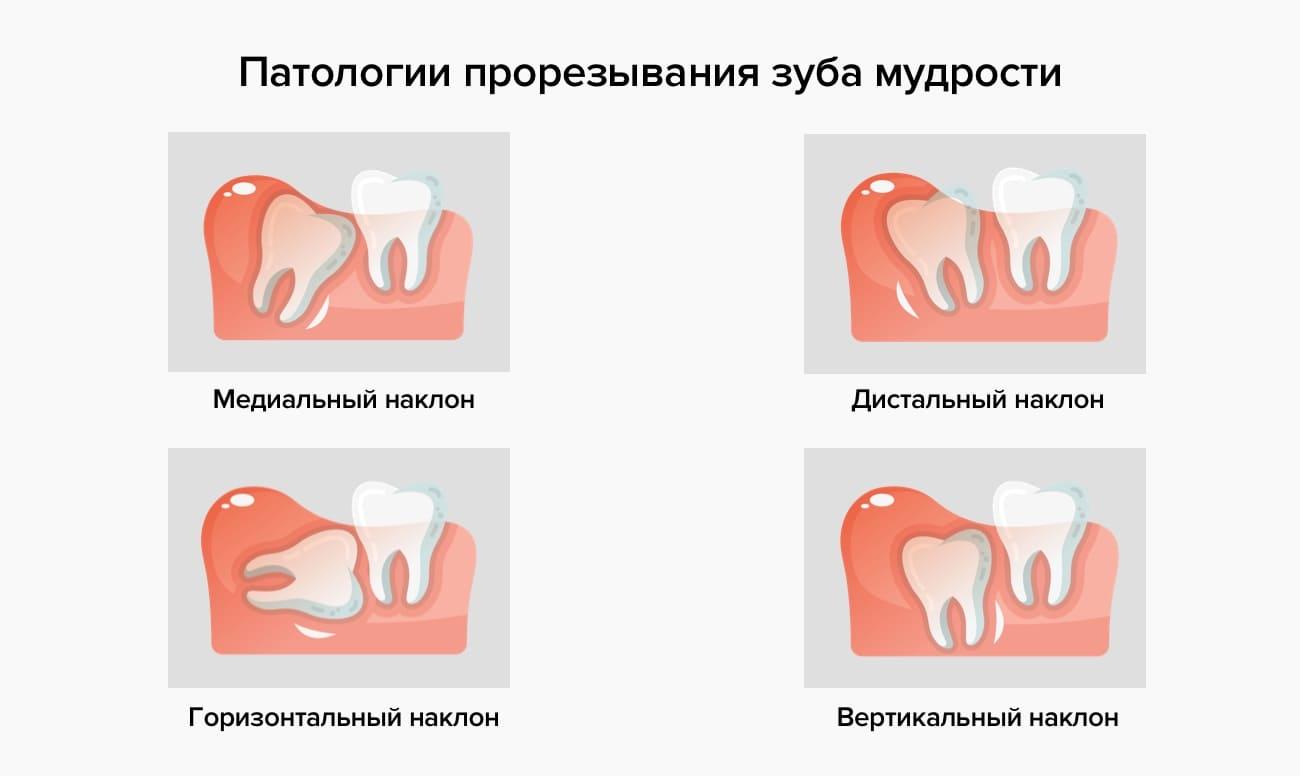 Как вырывают зубы мудрости - больно ли это, сколько заживает десна, что делать