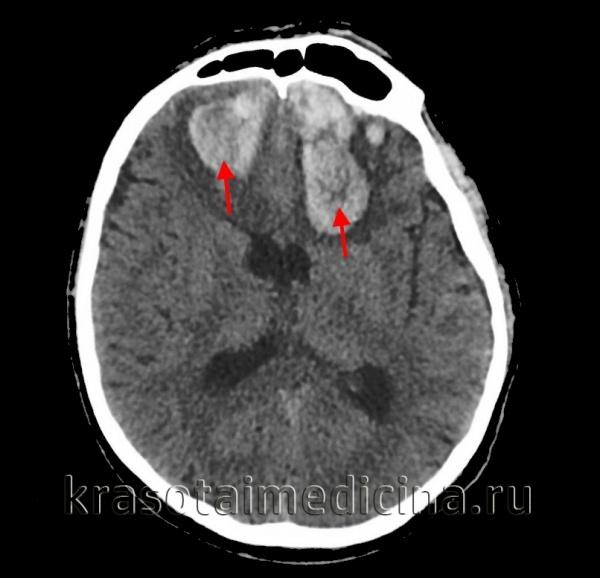 Кровоизлияние в мозг: последствия, симптомы, причины