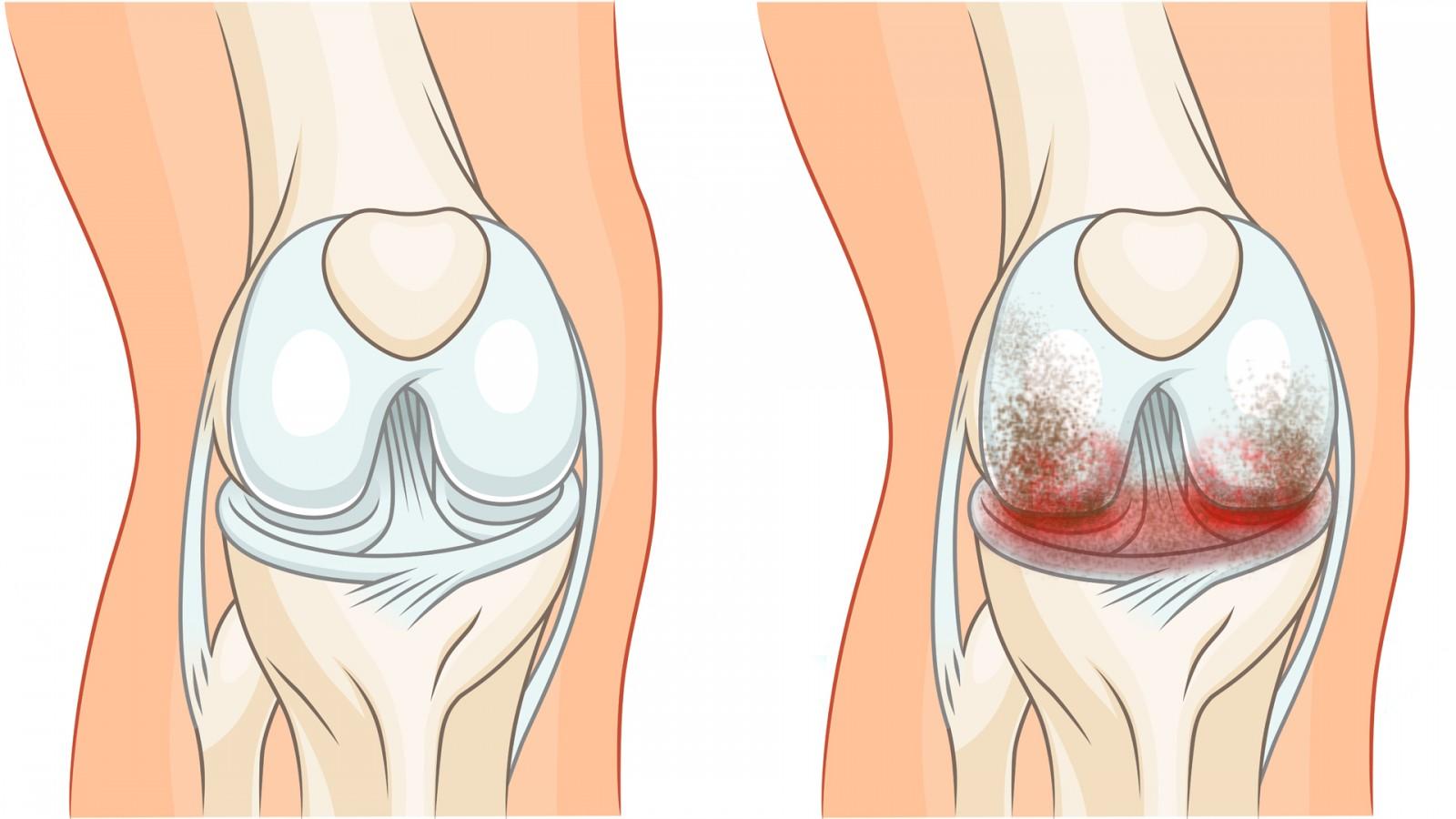 Гонартроз коленного сустава 1 степени: причины развития, симптомы, лечение