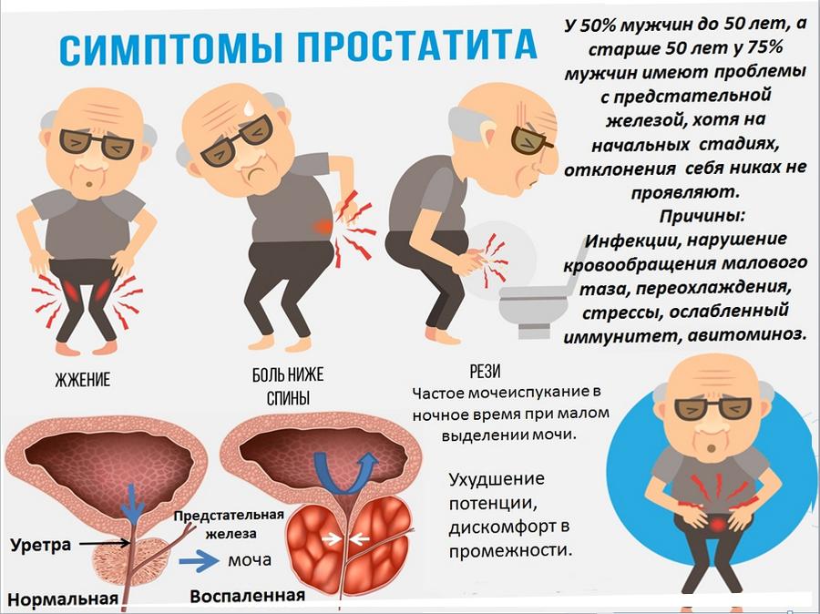 Простатит у мужчин: признаки, симптомы, лечение + топ-5 лекарств