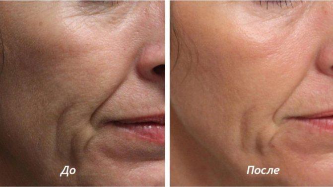 Биоревитализация лица гиалуроновой кислотой: ход процедуры, результаты до и после