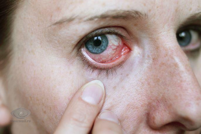 Что такое слезы: состав слёзной жидкости человека, функции слезы