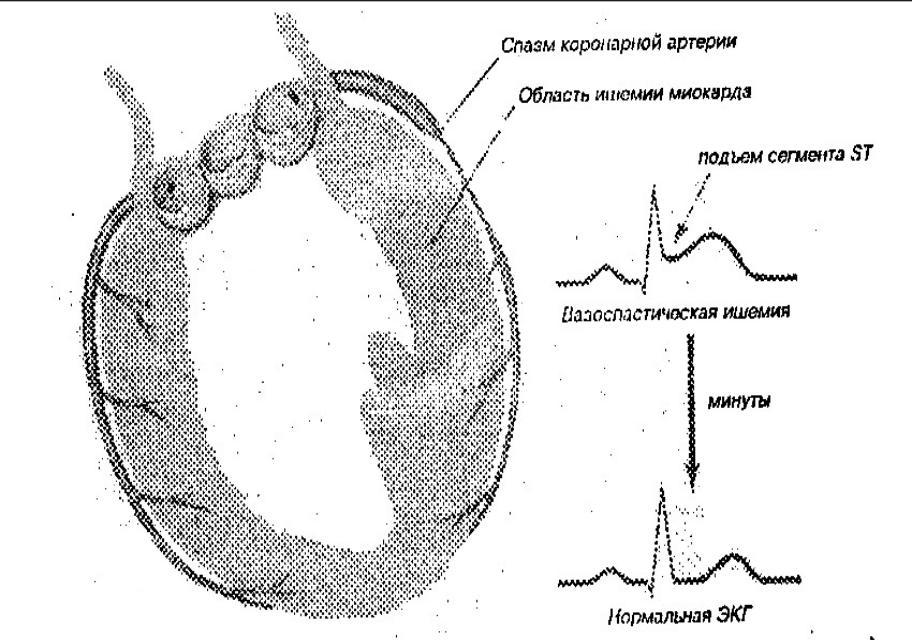 Вазоспастическая стенокардия — симптомы, диагностика и лечение
