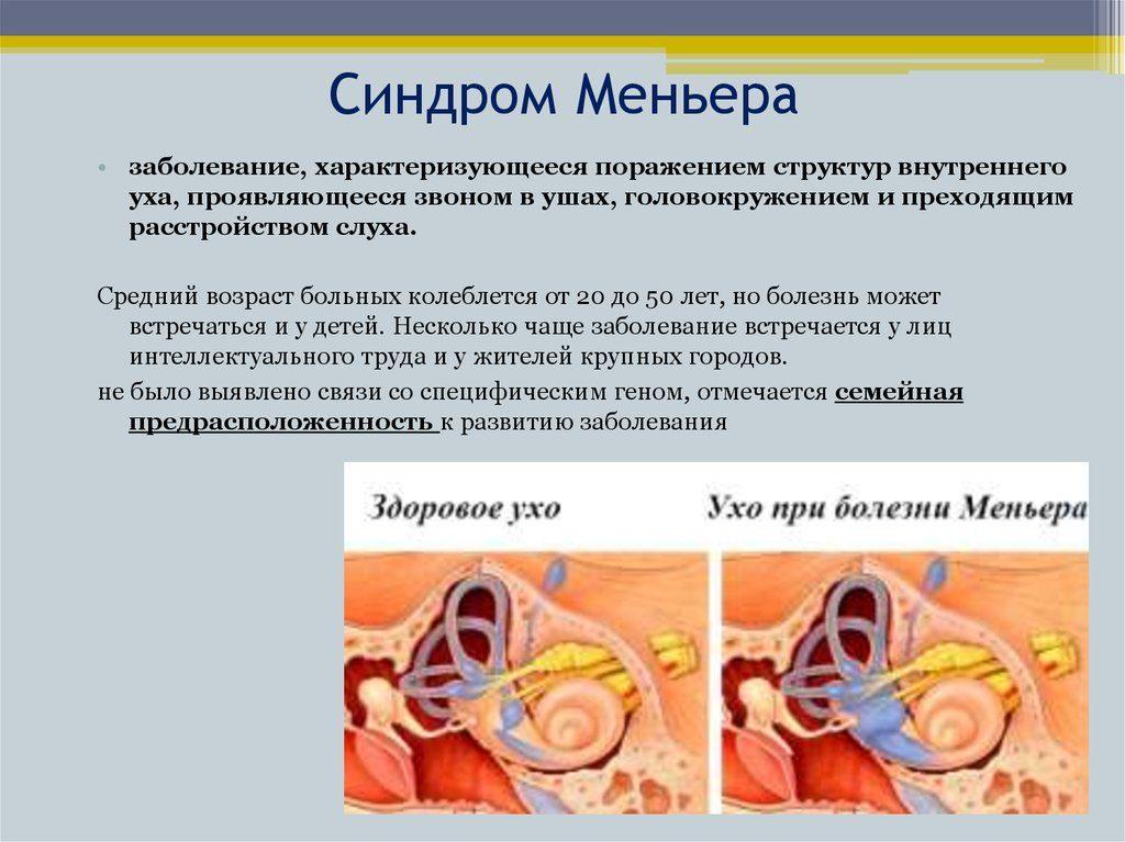 Что такое вертиго? симптомы и лечение синдрома