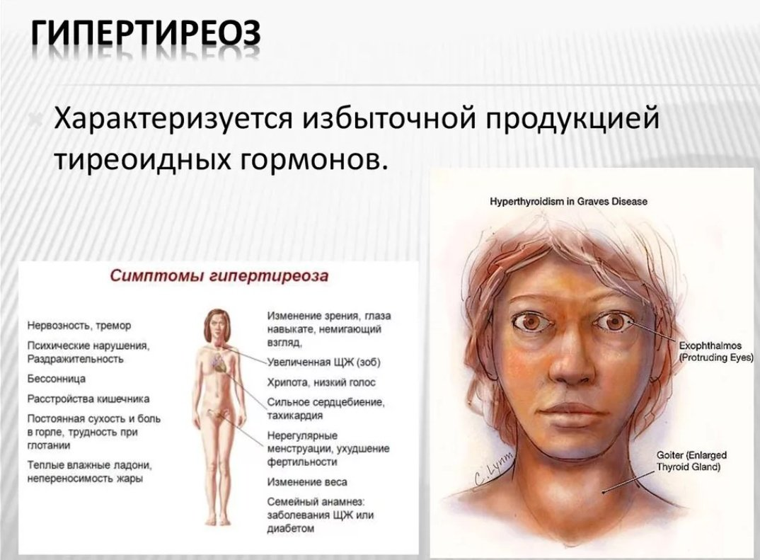 Гипертиреоз — википедия с видео // wiki 2