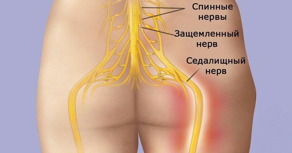 Ишиас - симптомы, причины заболевания