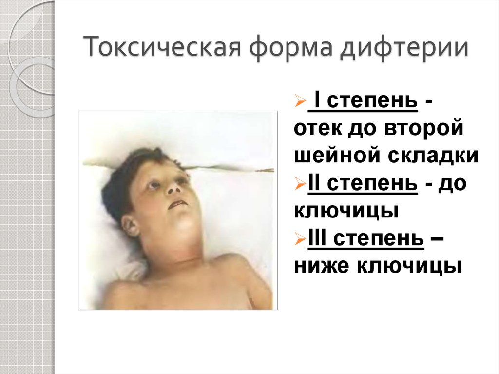 Болезнь дифтерия: симптомы, лечение и профилактика