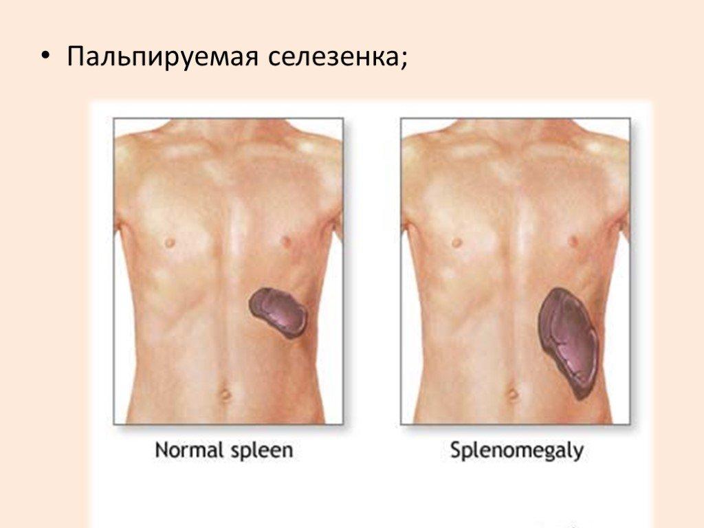Гепатомегалия печени: что это такое, причины, признаки, медикаментозное лечение препаратами, диета и прогноз