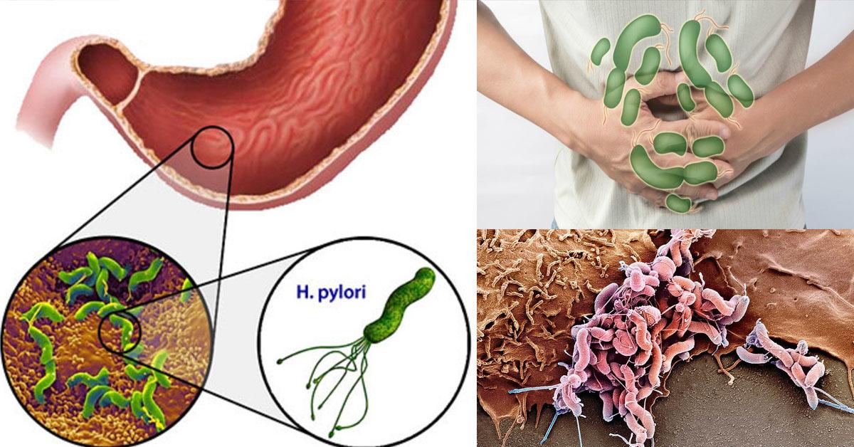 Хеликобактер пилори: симптомы и схема лечения. как лечить бактерию helicobacter pylori?