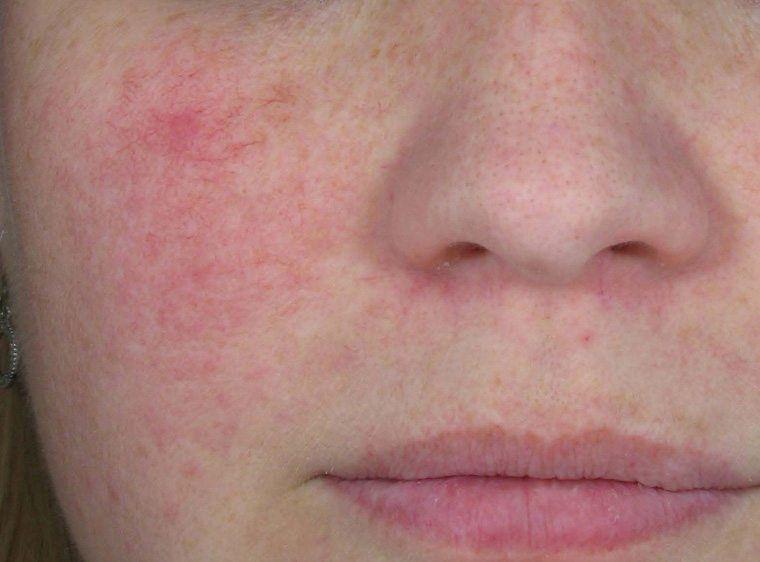 Гиперемия – причины, симптомы, виды и лечение гиперемии