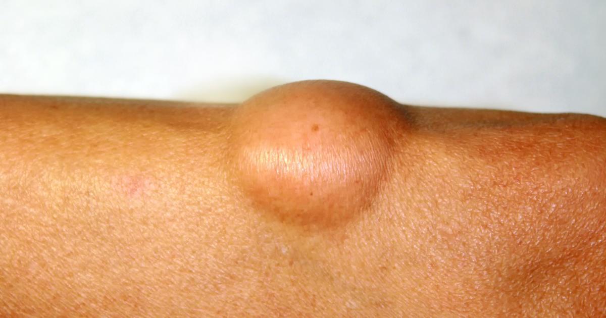 Липома в легких, что это такое? симптомы и признаки болезни