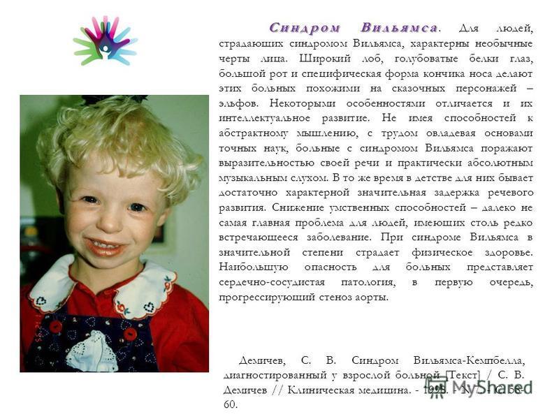 Фото детей с синдромом вильямса и продолжительность их жизни