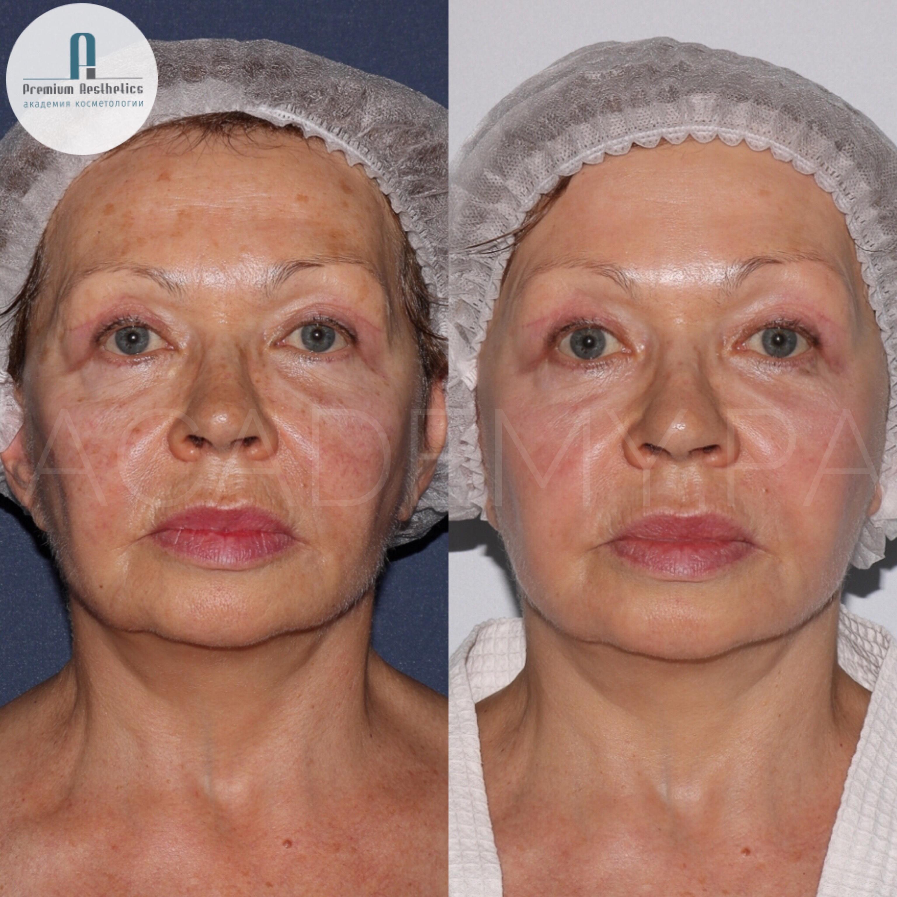 Лазерное омоложение лица: отзывы, фото до и после