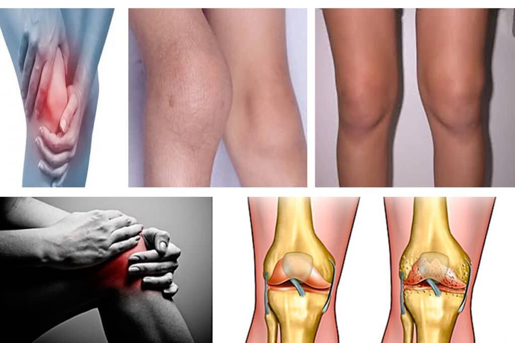 Артроз коленного сустава: симптомы, причины и эффективное лечение
