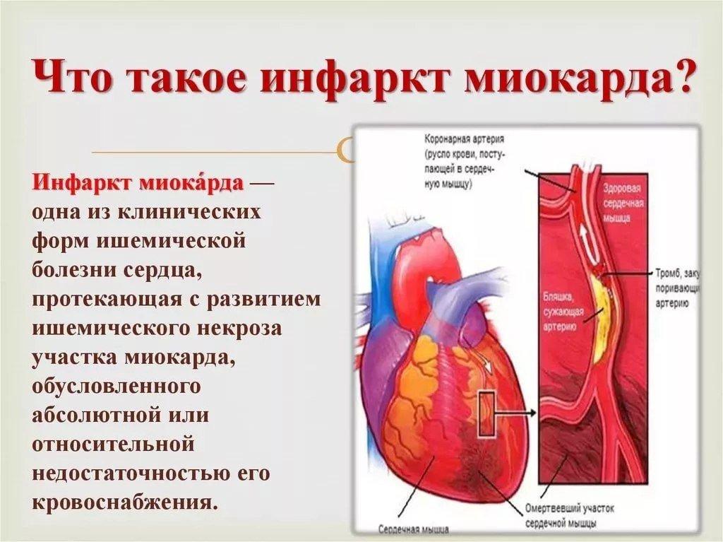 Инфаркт миокарда: острый, обширный и пр.; симптомы и лечение