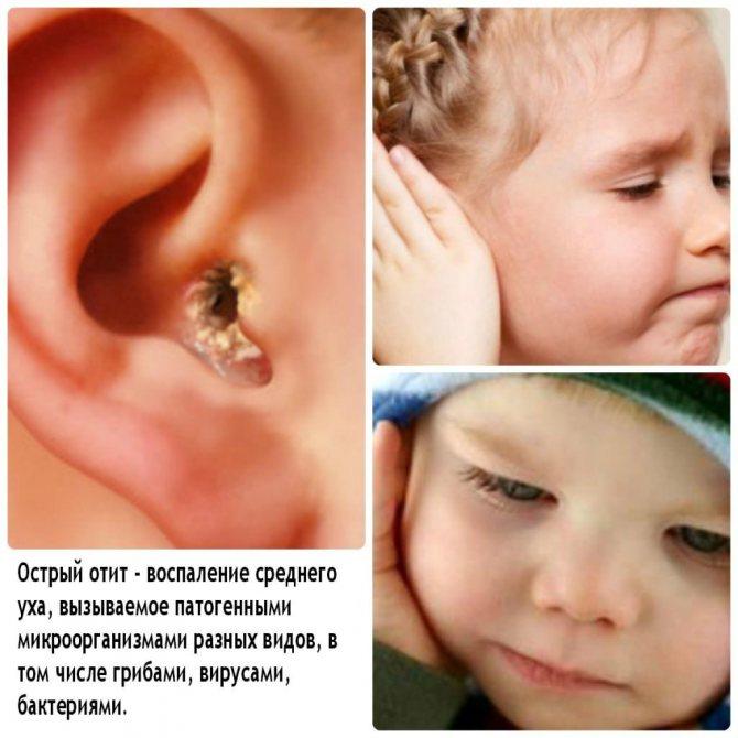 Отит: причины, симптомы воспаления, виды, лечение