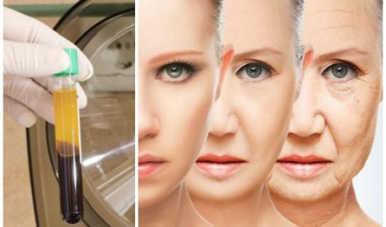 Плазмотерапия для волос от а до я