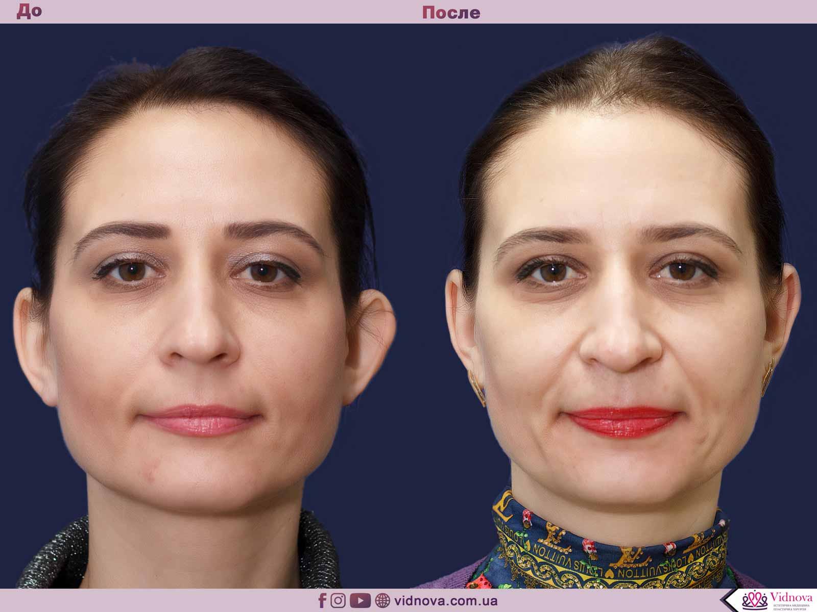 Отопластика (операция по коррекции ушей): показания, проведение, рекомендации