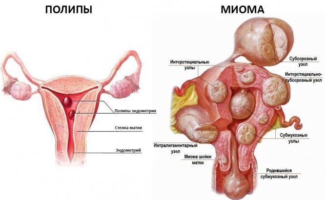 Виды полипов в матке: аденоматозный на ножке, железистый, грануляционный, плацентарный, множественные, большие и маленькие