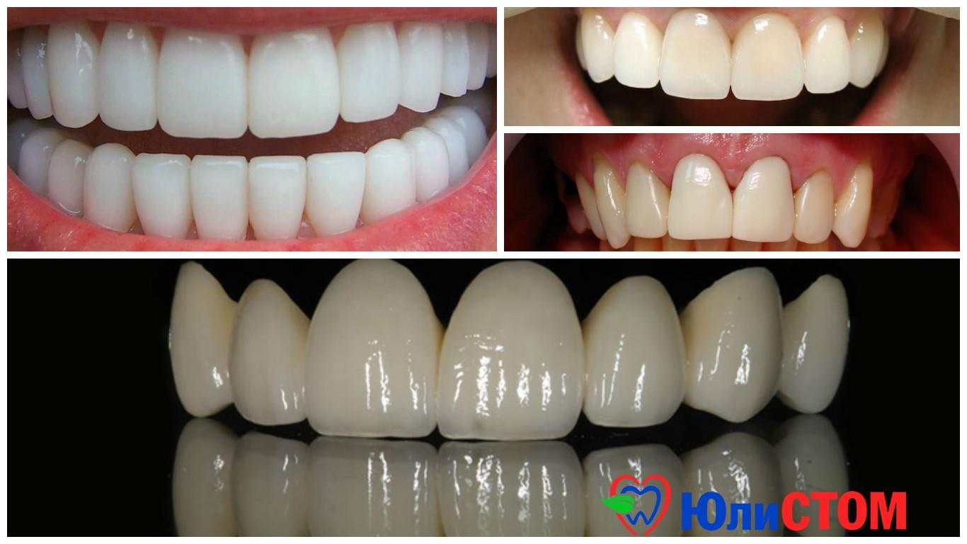 Коронка на зуб в стоматологии (искусственная): что такое, как делают протезирование, когда ставят, сколько держится, плюсы и минусы