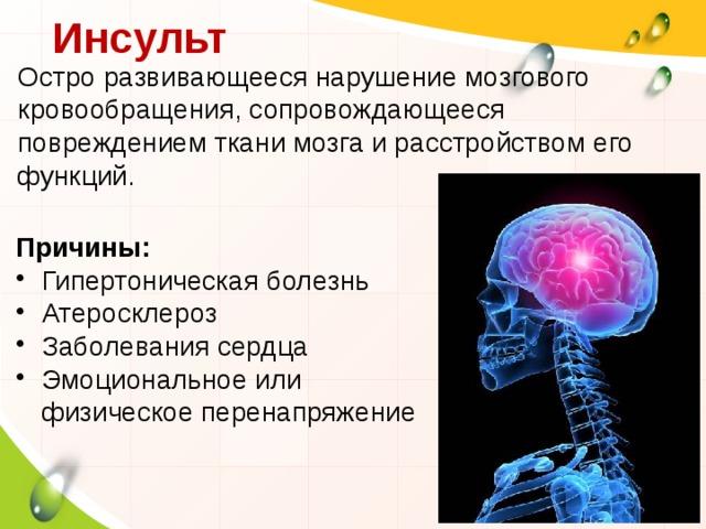 Острое нарушение мозгового кровообращения: причины, лечение и последствия