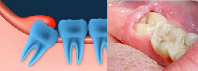 Зуб мудрости растет в зуб: причины и способы исправления дефекта