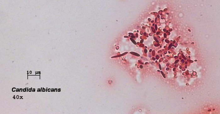 Candida albicans — что это такое и как лечить