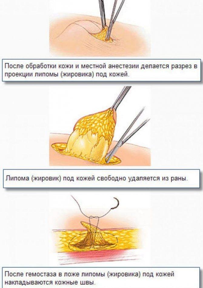 Липома: что это такое и как лечить, виды и фото - лечение онкологии