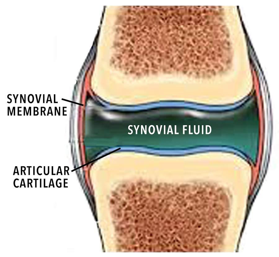 Синовиальная жидкость в коленном суставе: причины появления и лечение