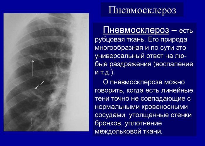 Как лечить фиброз легких: лечение пневмофиброза, народные средства