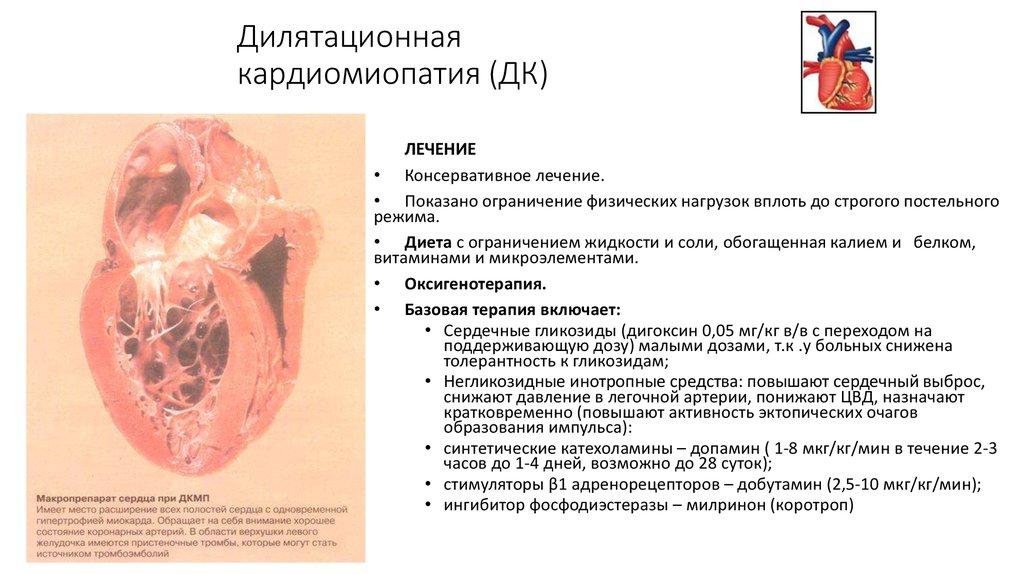 Ишемическая кардиомиопатия - что это, причины, симптомы