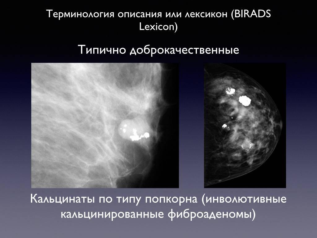 Кальцинаты в молочных железах | университетская клиника