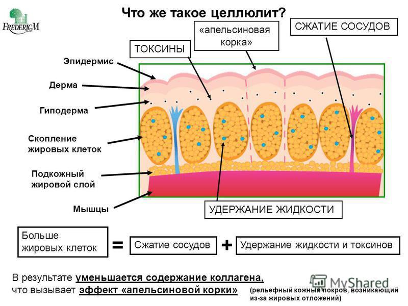 Стадии и виды целлюлита, способы лечения и профилактики