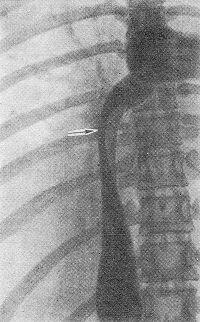 Паренхима печени: причины, симптомы, диагностика, лечение