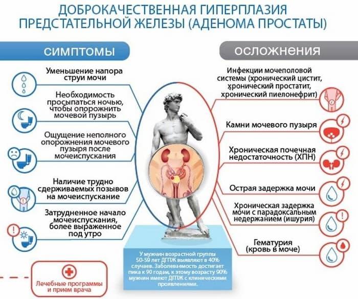 Гиперплазия предстательной железы - что это такое - prostatamaka