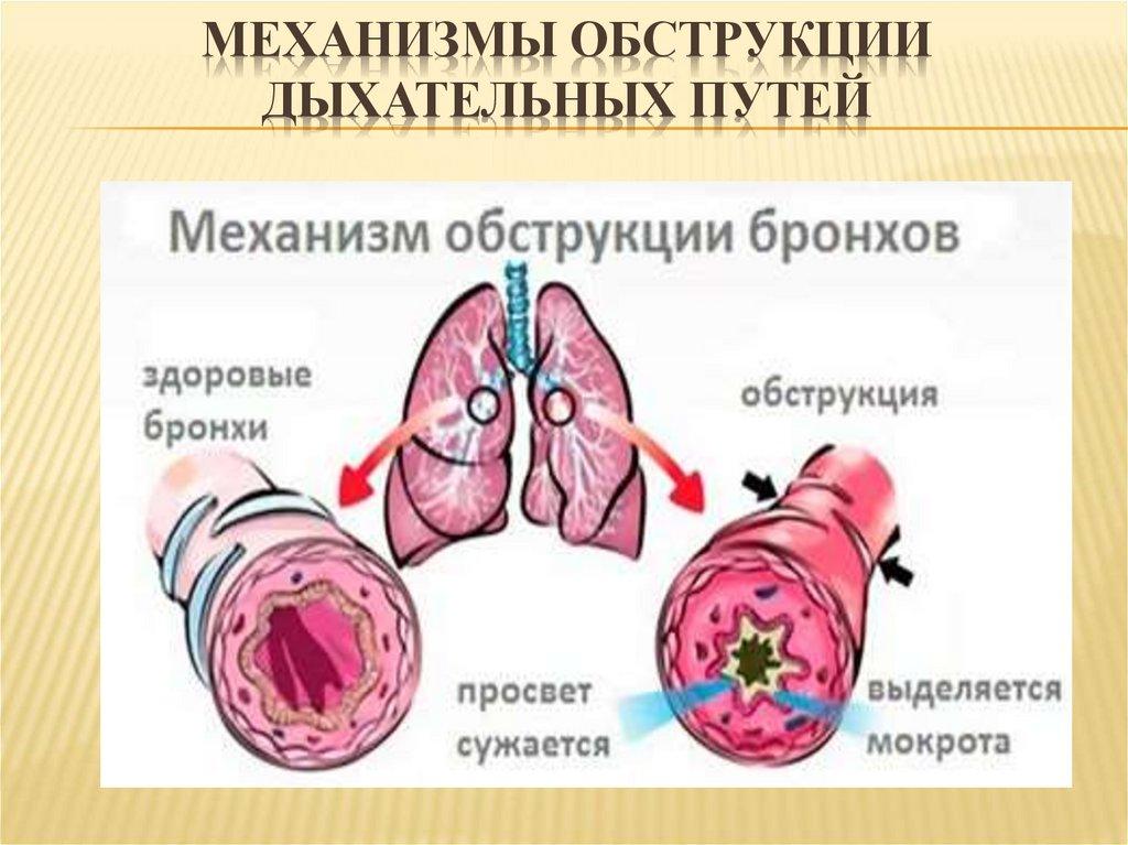 Первая помощь при острой обструкции верхних дыхательных путей
