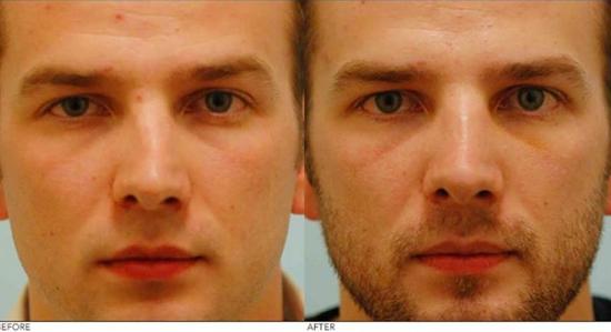 Эндоскопическая септопластика носовой перегородки - фото, цена и отзывы