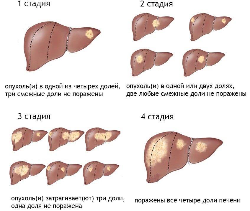 Гемангиома печени — причины возникновения у взрослых и лечение