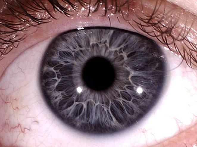 Чем определяется цвет глаз: особенности строения радужки – таблетикс