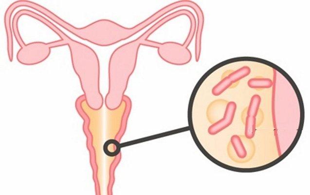 Кольпит у женщин - симптомы и лечение, что такое атрофический кольпит и как его лечить