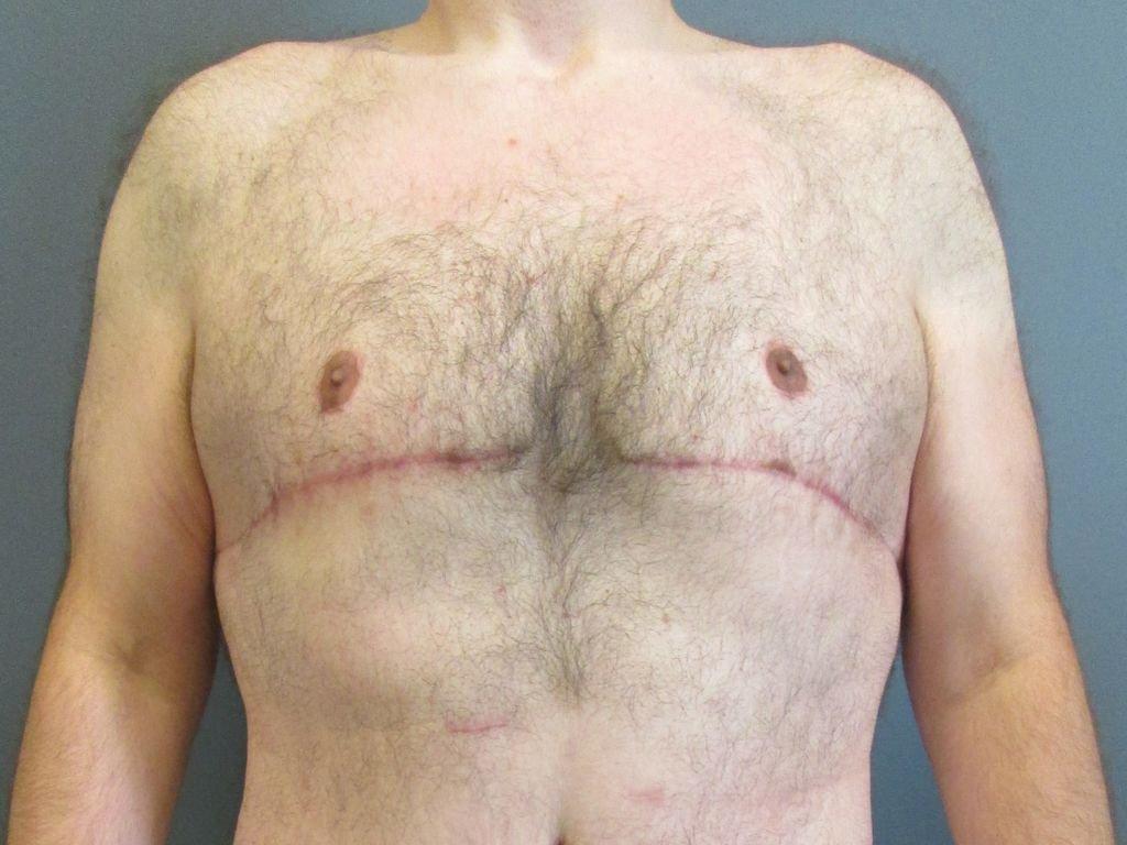 Гинекомастия у мужчин и у женщин: что это такое, причины, симптомы и лечение