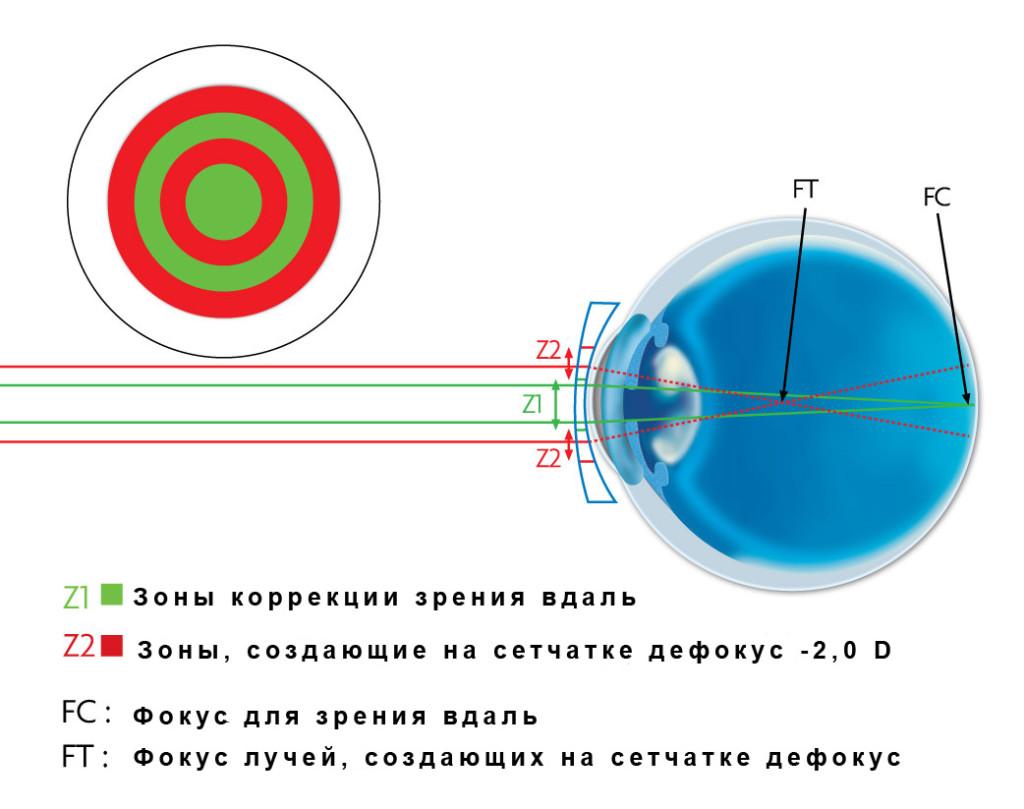 Мультифокальные контактные линзы: что они представляют собой, преимущества и недостатки мультифокальных линз